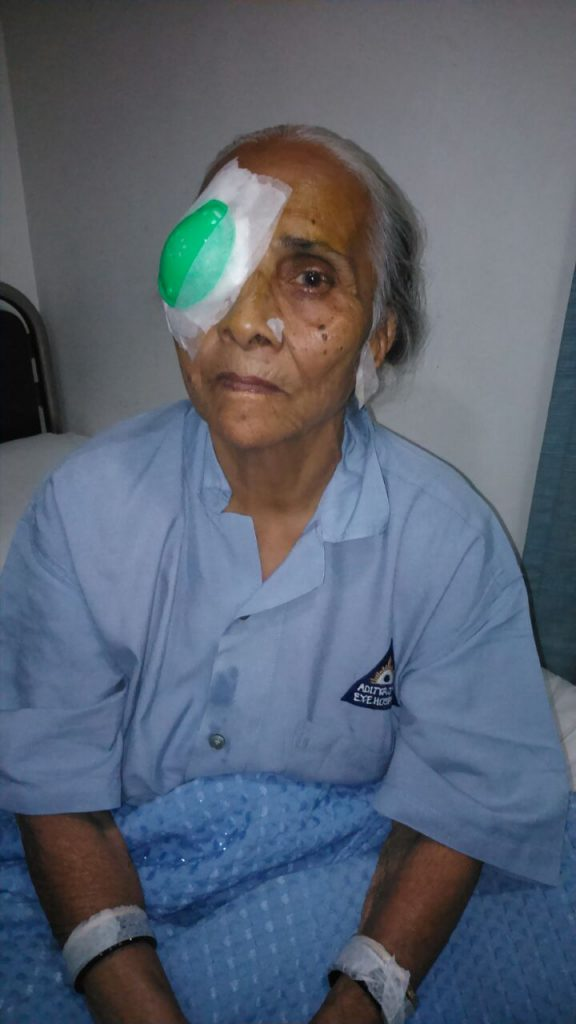 Successful completion of cataract surgery of a community member