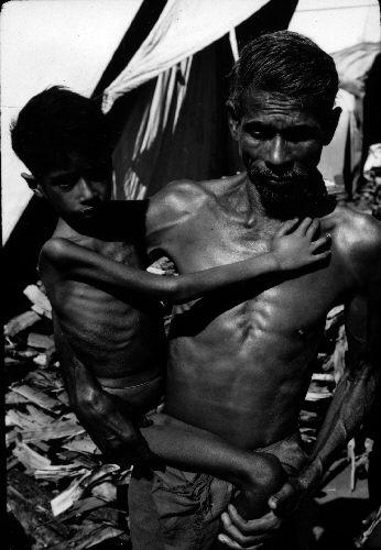 Starved_child